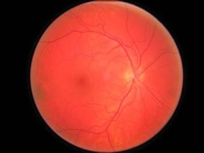 Exame de Fundo de Olho
