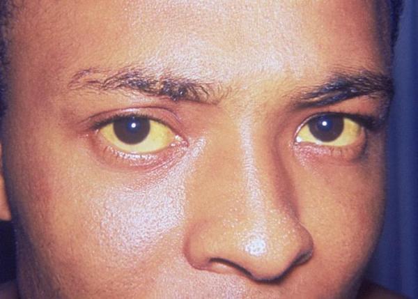 Olhos Amarelos