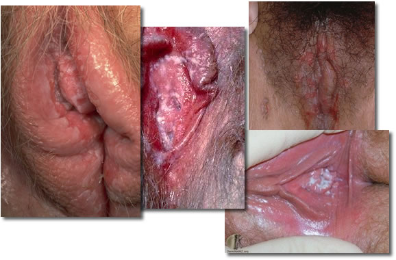 Candidíase Vaginal Sintomas