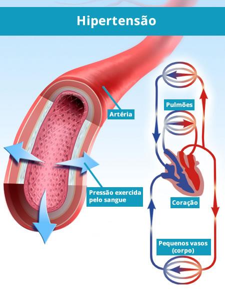 Quando a pressão exercida pelo sangue nos vasos arteriais ultrapassa um valor pré-definido e aumenta o risco de doenças cardiovasculares, chamamos isso de Hipertensão ou Pressão Alta.