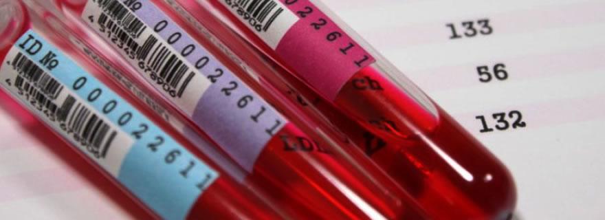 Jejum para Exame de Sangue