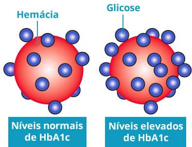 diagnóstico de diabetes con hemoglobina glicosilada hba1c